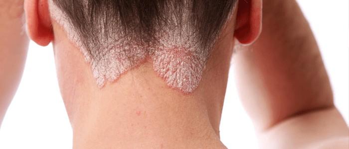 Иммунобиологическое лечение псориаза